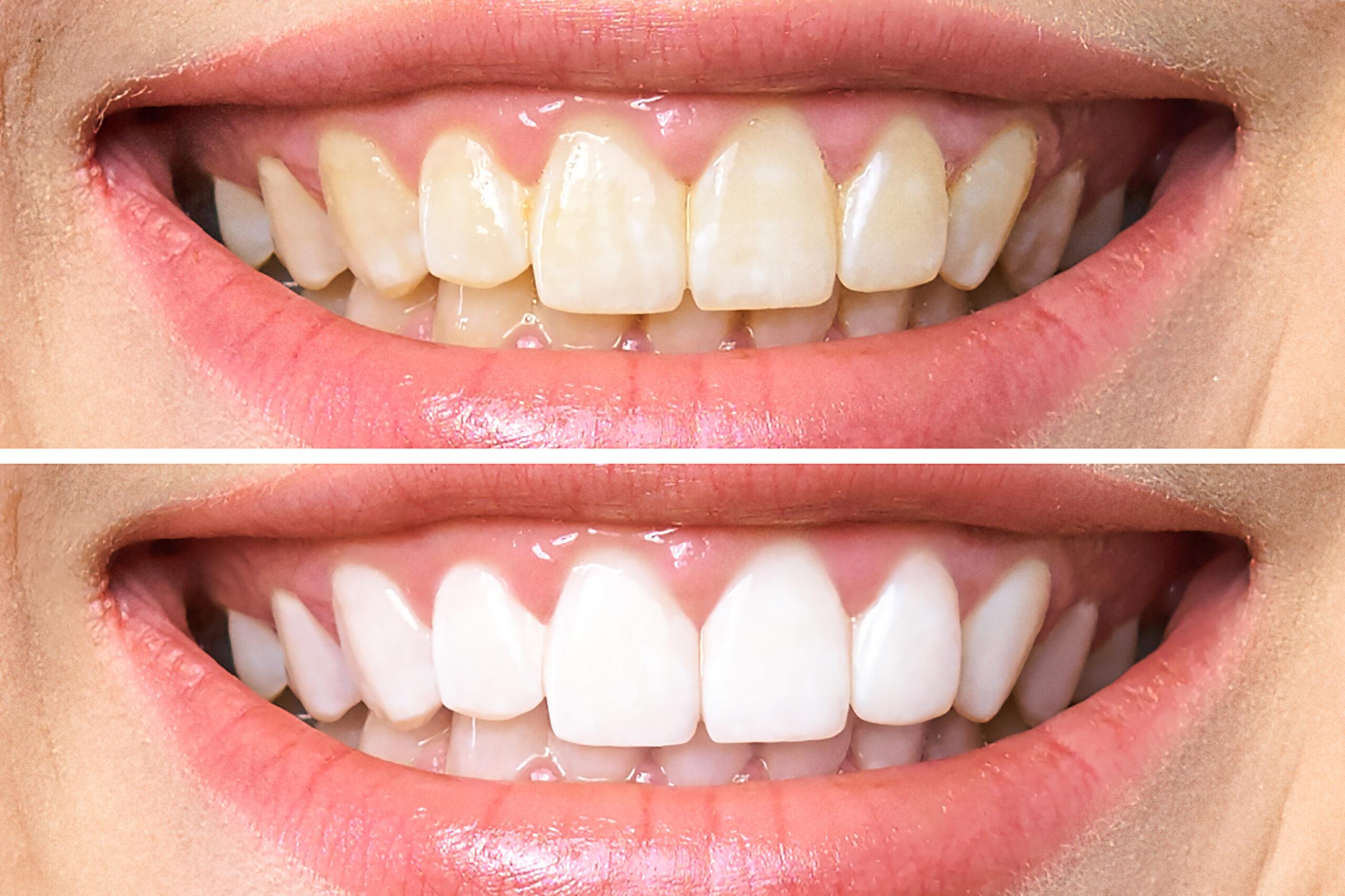 6. Отбеливание зубов